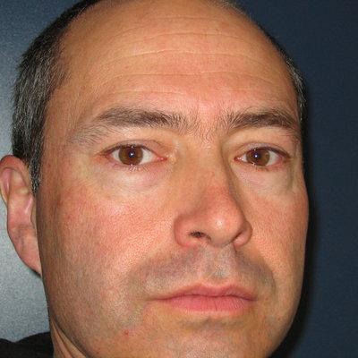 Profilbild von Head-Down